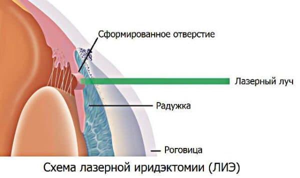 lazernaya-iridektomiya