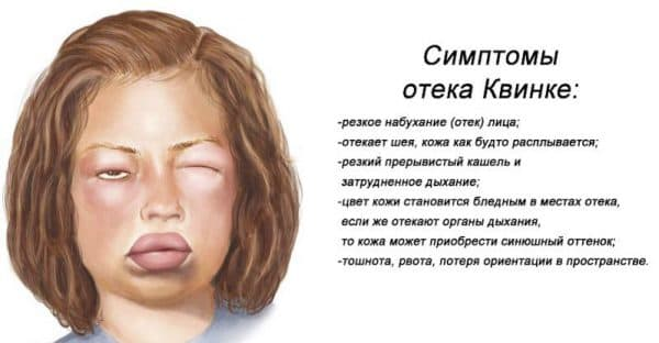 otek-kvinke
