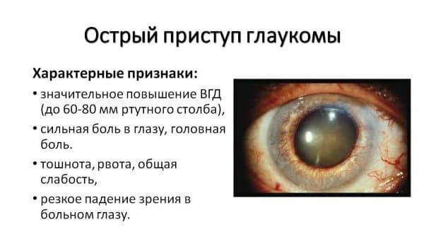 pristup-glaukomy