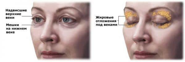 prichiny-vozniknoveniya-gryzhi-vek
