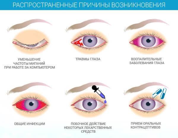 Причины возникновения сухости глаз