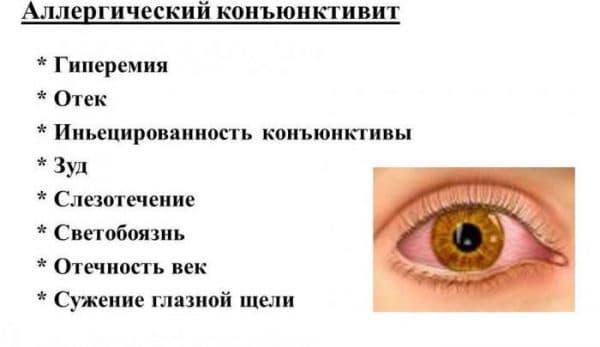 simptomyc-allergicheskogo-konyunktivita