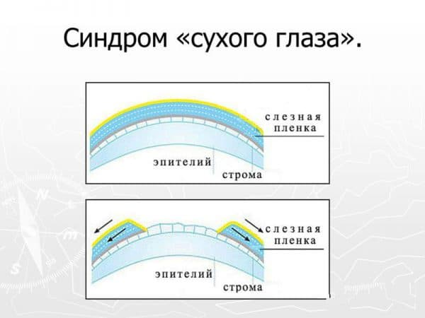sindrom-suxogo-glaza