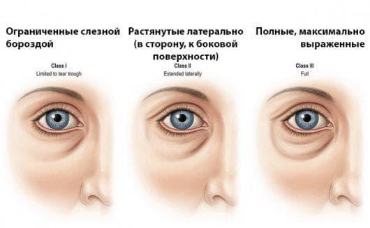 степени грыжи под глазами