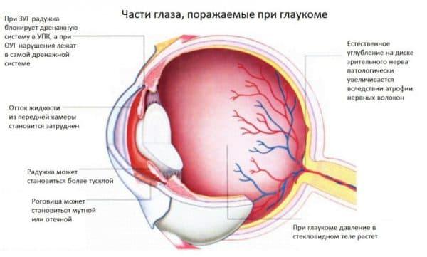 chasti-glaza-porazhaemye-glaukomoj