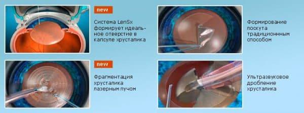 Этапы проведения операции по удалению катаракты при помощи лазера