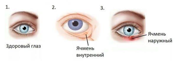 yachmen-na-glazu