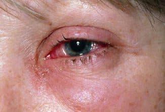 allergiya-na-glazax