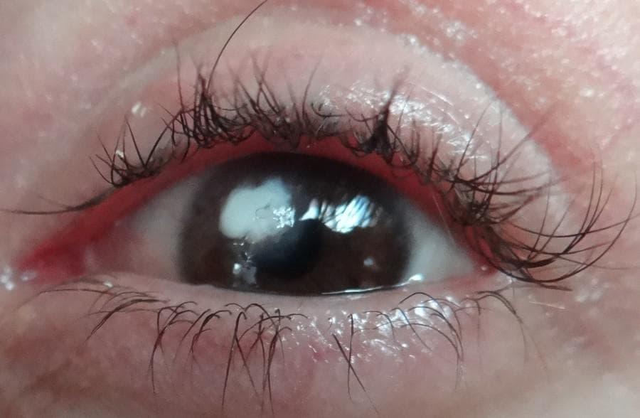 Бельмо на глазу: причины и лечение