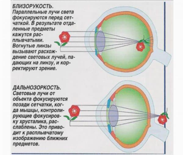 Метод Бейтса упражнения для восстановления зрения