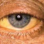 желтый белок глаз причины