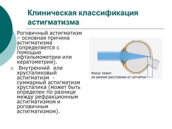 klassifikacii-astigmatizma-v-zavisimosti-ot-lokalizacii