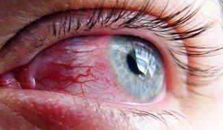 кровоизлияние в глазу что делать