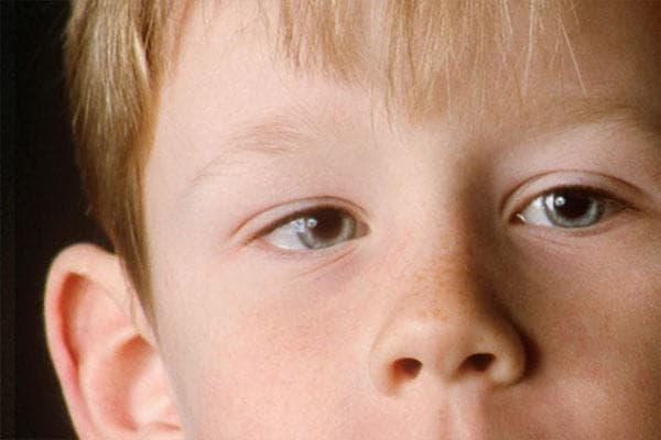 Что такое нистагм глазного яблока, как его правильно лечить