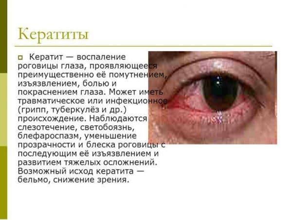 opredelenie-keratita-bakterialnogo-proisxozhdeniya