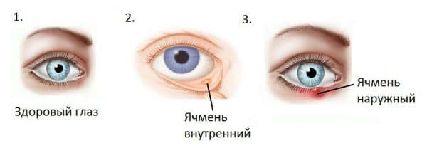 opredelenie-yachmenya-na-glazu