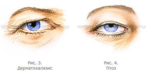 Рис. 1. Возрастные изменения зоны вокруг глаз