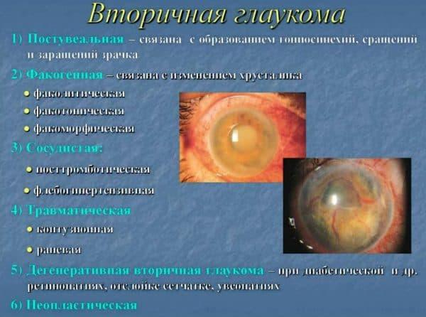 osobennosti-vtorichnoj-glaukomy