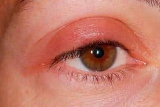 отеки глаз причины верхнее веко