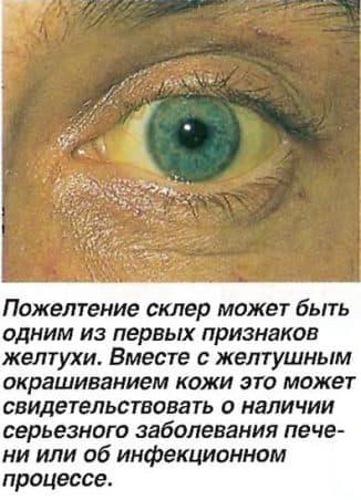 pozheltenie-skler
