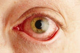 покраснение белков глаз причины