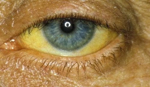 Желтые белки глаз: причины симптомы и лечение
