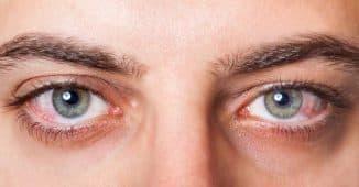 почему лопаются сосуды в глазах что делать