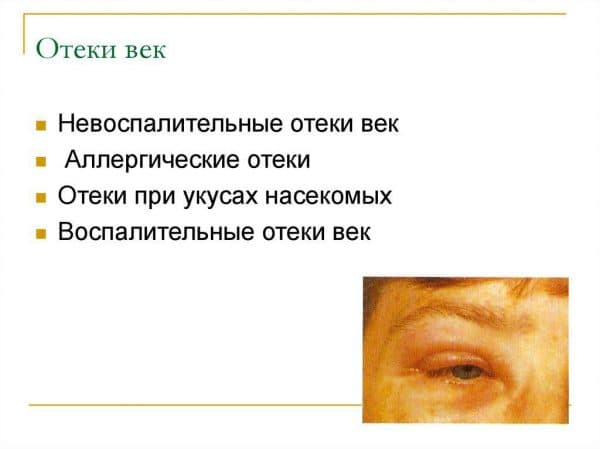 Опухли веки глаза не открываются
