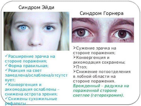 sindroma-gornera