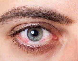 синдром сухого глаза причины заболевания