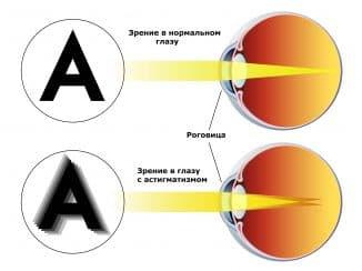 смешанный астигматизм обоих глаз