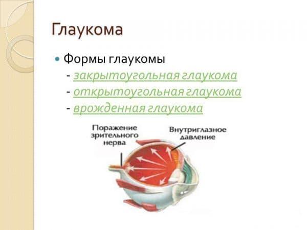 formy-glaukomy