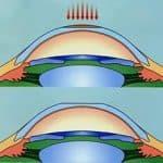 фрк операция на глаза