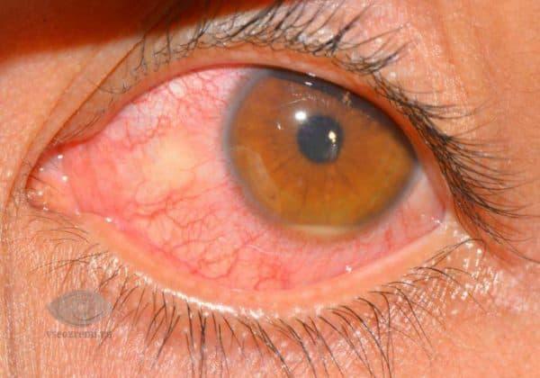 хориоретинит глаза
