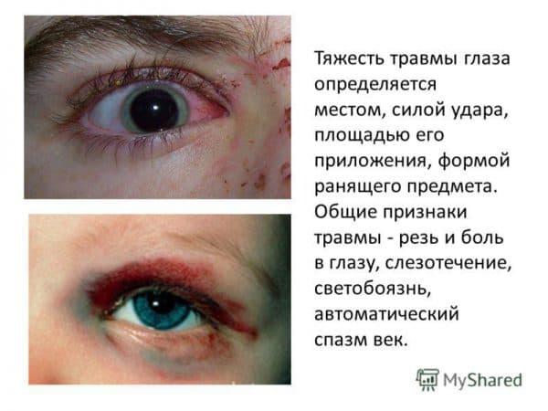 chem-opredelyaetsya-tyazhest-travmy-glaza