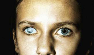 катаракта глаза операция