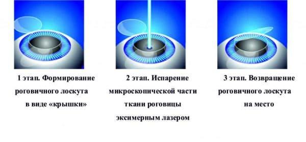 etapy-provedeniya-lazernoj-korrekcii