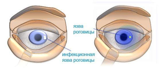 yazva-rogovicy-i-kapli-ofloksacin