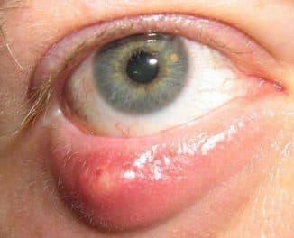 ячмень под глазом как лечить