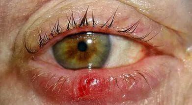 Ячмень под глазом – как лечить и чем, что делать и как вылечить: лечение || Ячмень под глазом