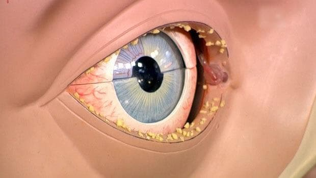 Глаза слезятся и гноятся у взрослого чем лечить