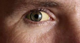признаки геппатита