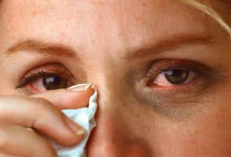 слезоточение глаз