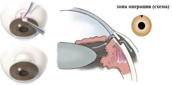 операция глаукомы