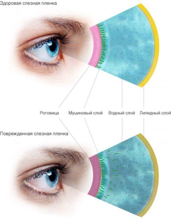 Естественное увлажнение глаз