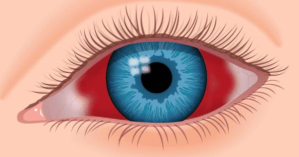 Кровоизлияние в глаз капли лечение