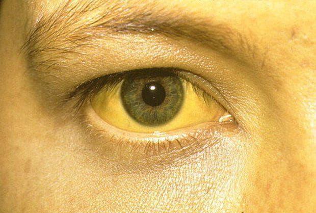 Желтые глаза: причины и симптомы пожелтения склер, кожи вокруг глаз и белков