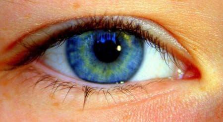Желто зеленые круги под глазами