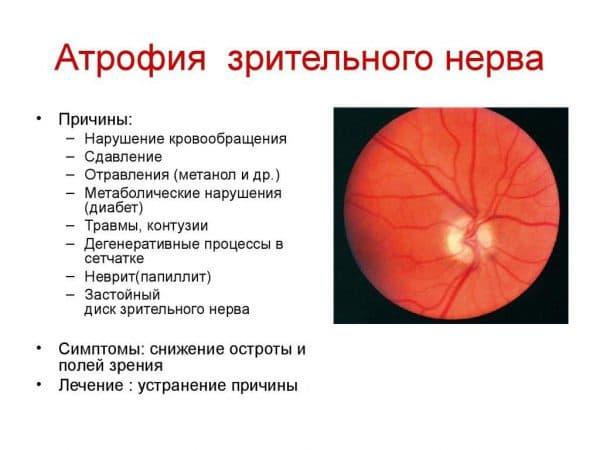 atrofiya-opticheskogo-nerva