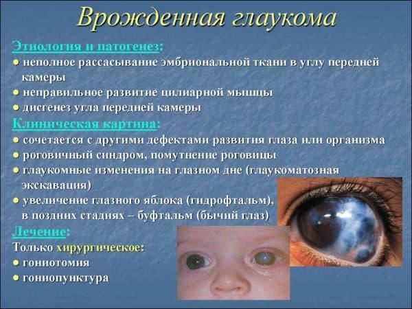 vrozhdennaya-glaukoma